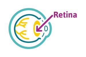 Descripción icónica de la estructura del ojo, resaltando la retina y el cristalino con una fígura ovalada de color amarillo