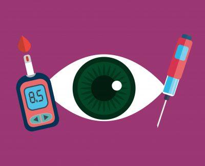 La retinopatía diabética es causada por los altos niveles de azúcar en la sangre ocasionados por la diabetes, estos a su vez dañan el flujo de sangre de los vasos sanguineos de la retina