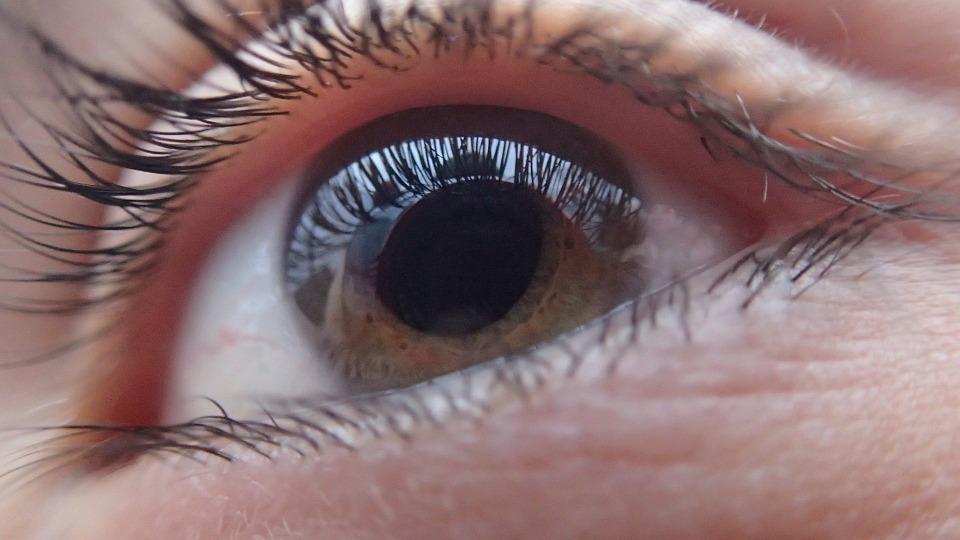 """Imagen de ojo color marrón presentando la enfermedad visual """"glaucoma"""", donde pareciera que la pupila se encuentra dilatada, pero realmente muestra la presión ocular."""