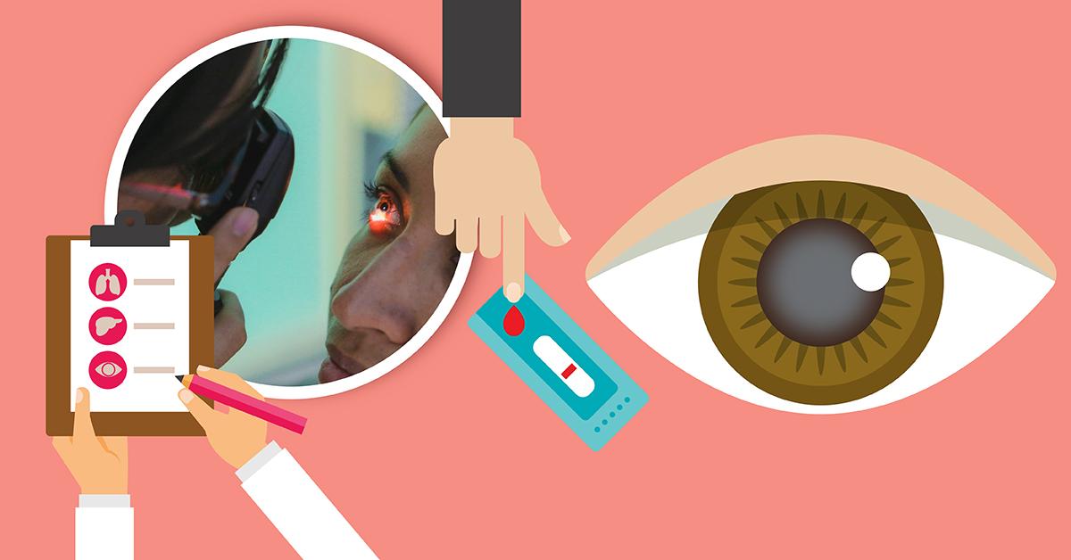 sangre detrás de la diabetes ocular