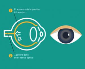 Presión intraocular en el ojo