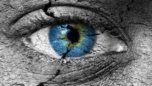 Ojo dañado por sequedad ocular grave
