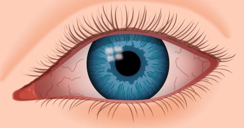 Síntomas de ojo seco, enrojecimiento